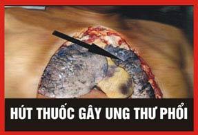 Thuoc-la-gay-ung-thu.jpg