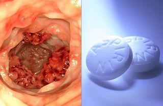 Tập tin:Dung-aspirin-chua-benh-ung-thu.jpg