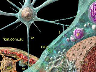 Tập tin:Prion-infecting-neuron.jpg