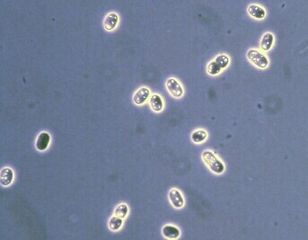 Tập tin:Thiocystis.jpg
