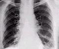 Anthrax - inhalational.jpg