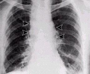 Tập tin:Anthrax - inhalational.jpg